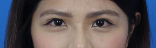 高雄萊佳形象美學診所賴慶鴻醫師談3D雙眼皮手術