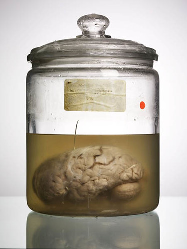 """Malformed Study no. 94, Label destroyed. By Adam Voorhes  for his book, """"Malformed: Forgotten Brains of the Texas State Mental Hospital."""""""