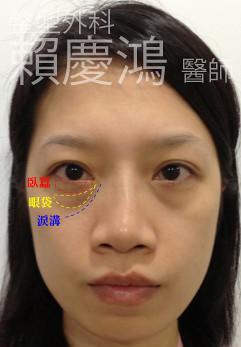 賴慶鴻醫師談臥蠶-解說2