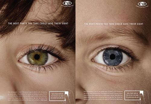 Fotos com flash podem detectar cancro nos olhos