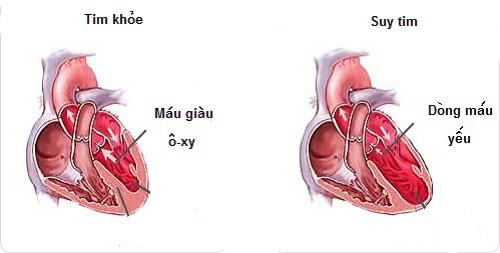 Suy tim tâm trương và cách điều trị
