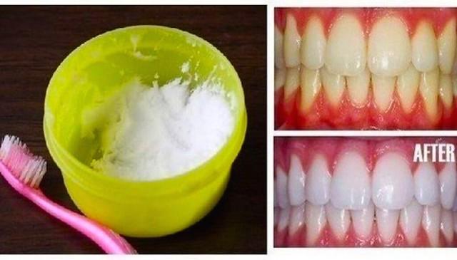 เบกกิ้งโซดาขัดฟันขาว