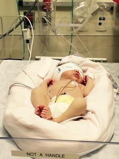 Baby Ezri hospital phototherapy