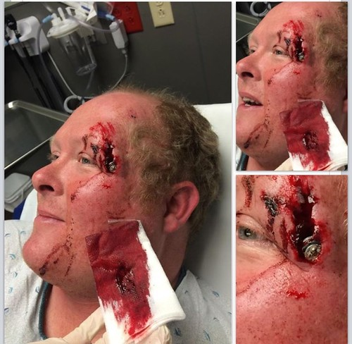 Jim shows us why you should wear a helmet. Ouch.