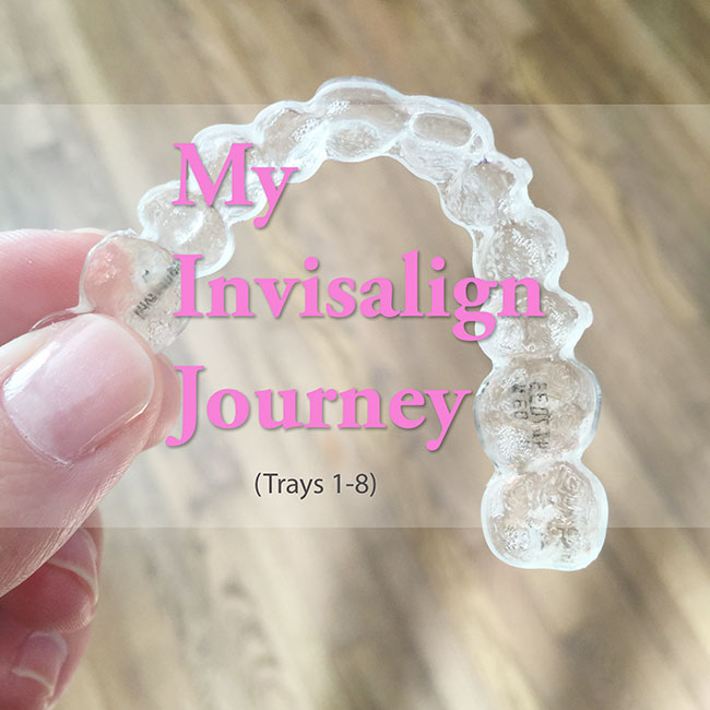My-Invisalign-Journey_650