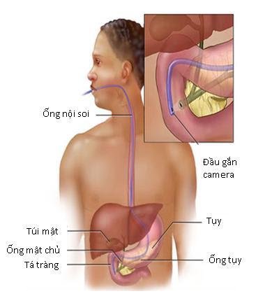 Mổ sỏi mật bằng phương pháp nội soi