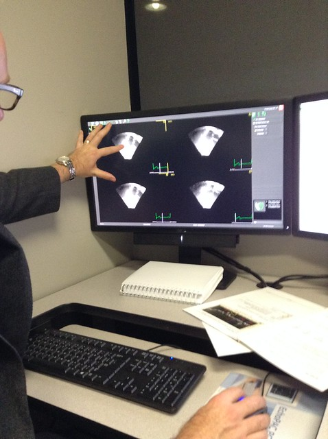 Echocardiography Analysis