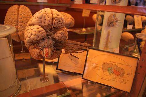 Cerveau et les différents nerfs occulaires