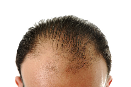 The Best Home Remedies For Hair Loss.
