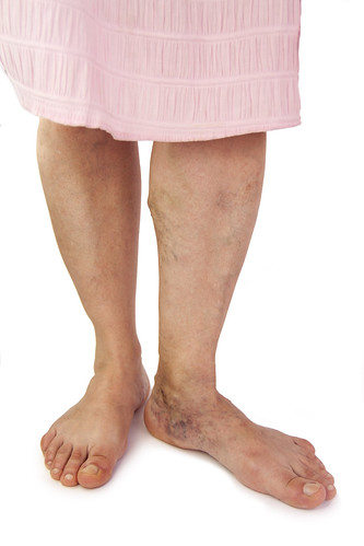Dr. Joel Schlessinger answers: are varicose veins dangerous?