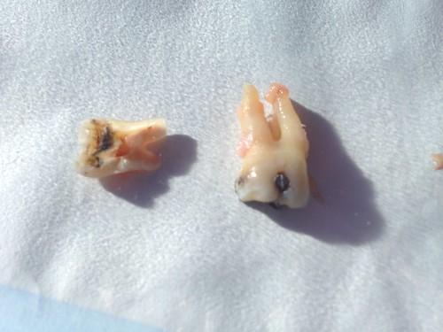 RIP lower back molar