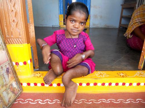 खुदाबख्शपल्ली गाँव की 22 वर्षीय रजिता के दोनों पैर इस बीमारी की चपेट में हैं