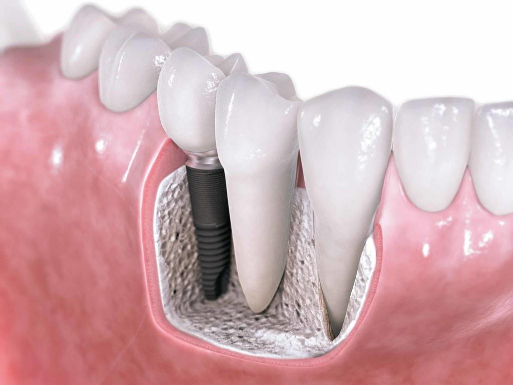 Bone Regeneration and Dental Implants