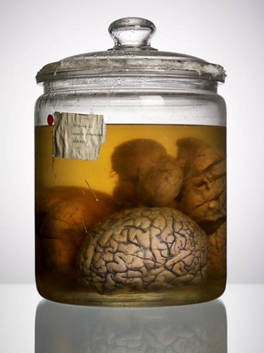 """Malformed Study no. 9, Down's Syndrome, 02/10/83. By Adam Voorhes for his book, """"Malformed: Forgotten Brains of the Texas State Mental Hospital."""""""