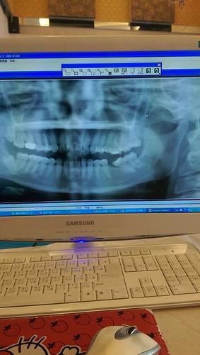 台中豐美牙醫診所植牙記 (8)