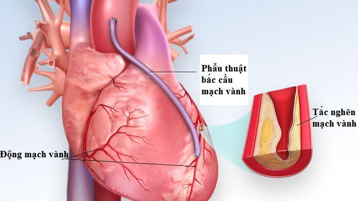 Tin vui: Bệnh viện Việt Đức khám miễn phí cho 100 người bị động mạch vành