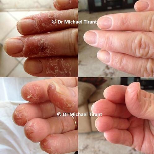 Bệnh á sừng bàn tay, chân và cách chăm sóc da khi mắc bệnh á sừng