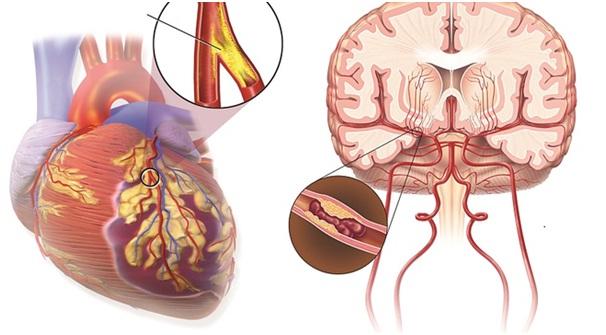 đột quị, đau tim cao hơn trong dịp tết