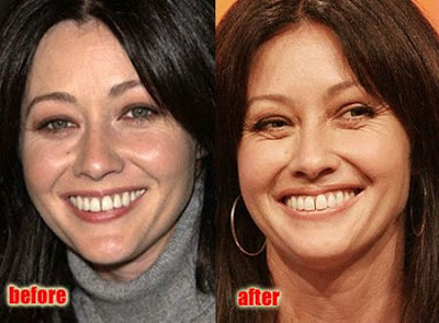 Shannen Doherty Plastic Surgery Before and After Botox Injections, Nose Job and Facelift