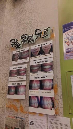 台中豐美牙醫:一場安心的返鄉洗牙之旅 (2)