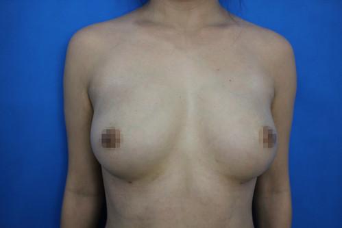 高雄隆乳諮詢推薦!賴慶鴻醫師談隆乳手術方式選擇 (7) 自體脂肪隆乳