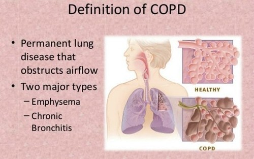 Prevention of Chronic Obstructive Pulmonary Disease by Diet and Lifestyle