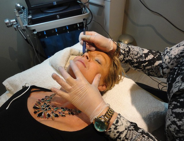 Numi laser spa in Brampton, vein removal, capillaries on nose