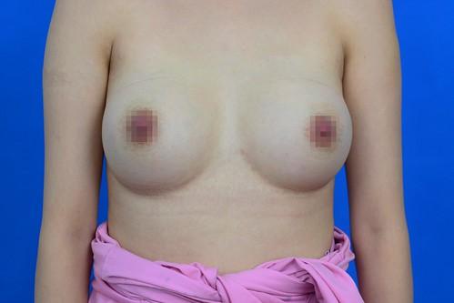 高雄隆乳諮詢推薦!賴慶鴻醫師談隆乳手術方式選擇 (8) 果凍隆乳