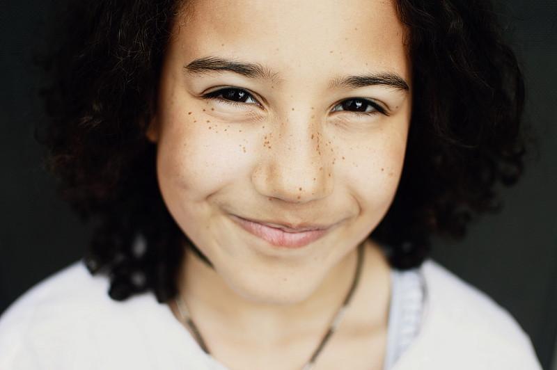 Fotografie Mädchen Sommersprossen
