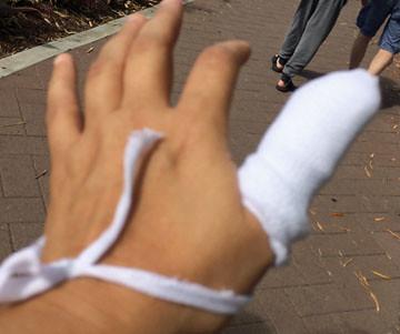 Gauze Wrap Finger