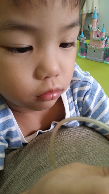 Lip eczema