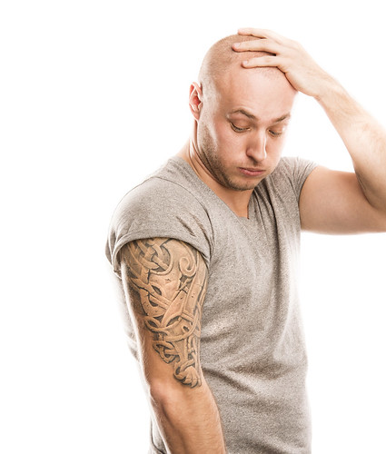 Laser tattoo removal remains the best method, says Dr. Schlessinger.