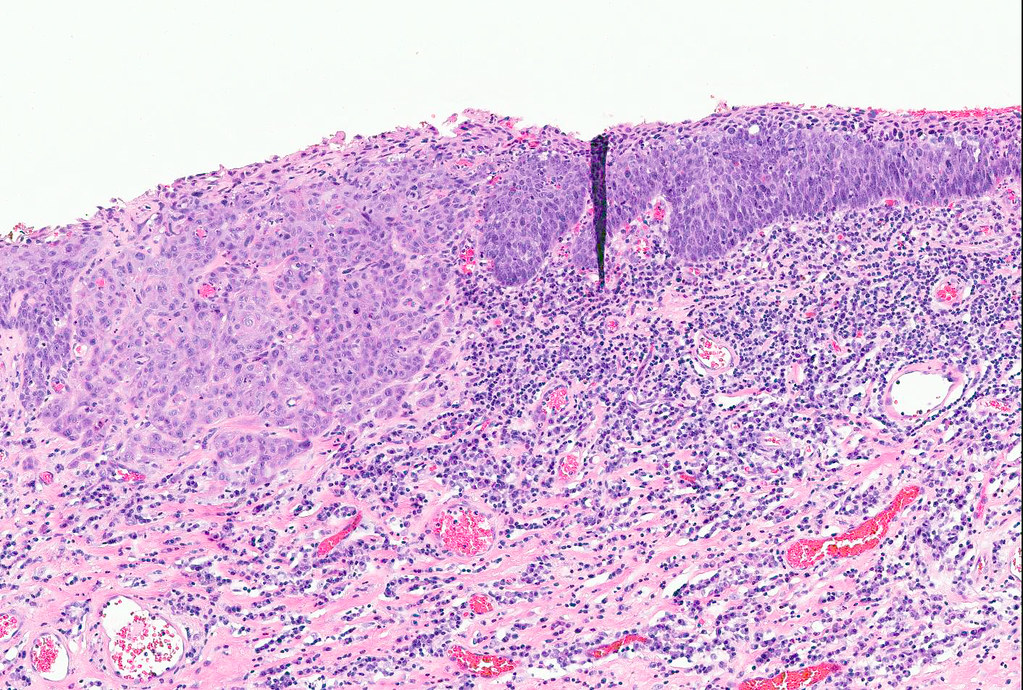 squamous cell carcinoma vulva