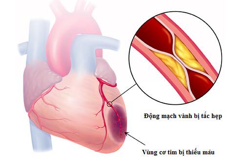 Thiếu máu cơ tim nguyên nhân tử vong hàng đầu