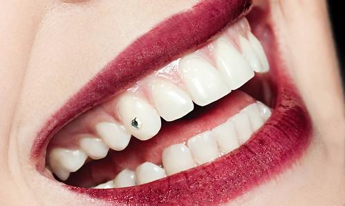 Зуб стоматолог діамант бриллиант