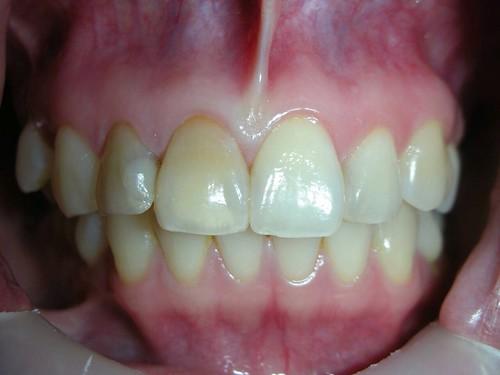 台中豐美牙醫水晶瓷牙打造我的笑容黃金比例 (4)
