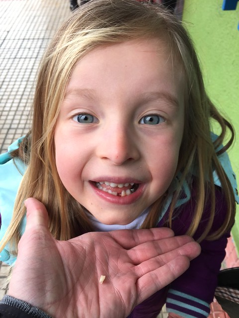 Nora lost her first tooth