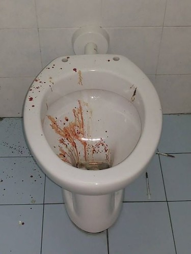 Ateneo di bari siringhe e sangue in bagno - Bagno di sangue ...