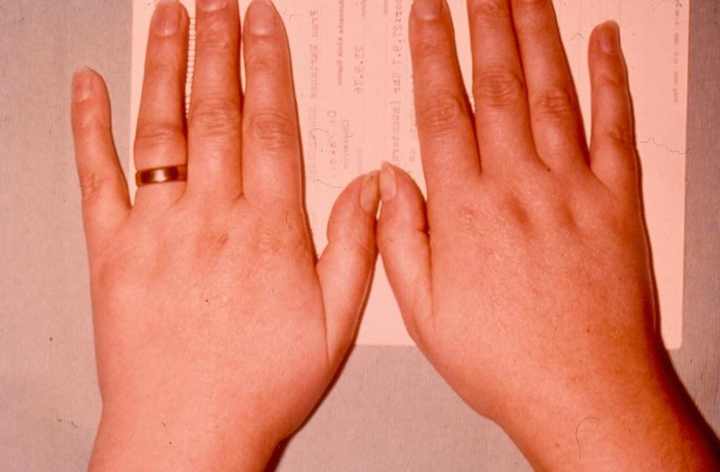 Лечение ревматоидного артрита на ранних стадиях
