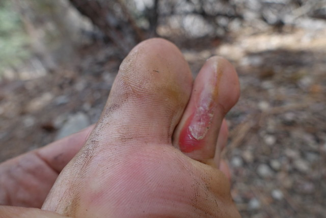 Blisters!  m256