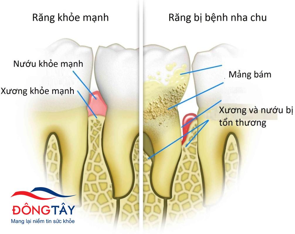 Nha-chu-la-bien-chung-rang-mieng-thuong-gap-o-nguoi-benh-tieu-duong