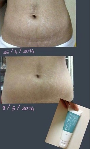 Before and after results of Pentaxyl - stretch marks
