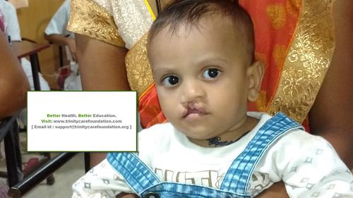 Free Cleft Lip Palate surgery india