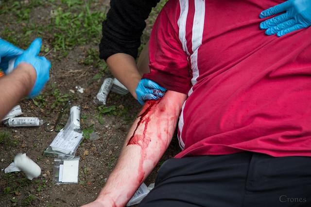STOP the bleeding!