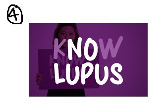 4 know lupus