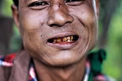 Betel teeth  .  .   .   #portraitoftheday #betelnut #streetphotography #facemodel #travelphotography #traveller #burmesedays #birmanie #birmania #mrauku #rakhine #mingalabar #myanmartravel #myanmar #wanderlust #burmese #portrait #portraiture #retrato #den