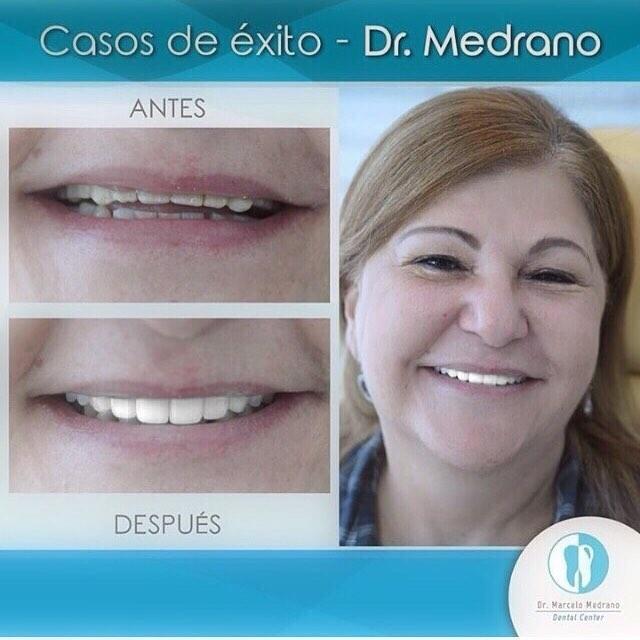 DR MARCELO MEDRANO ESPECIALISTA EN ESTÉTICA DENTAL 0990755754. diseño de sonrisa con carillas de porcelana marca E-max. SONRÍE !!!!!! Aprovecha nuestro 2x1 en limpieza moderna con ultrasonido marca coltene  y te regalamos la revisión y el diagnóstico comp