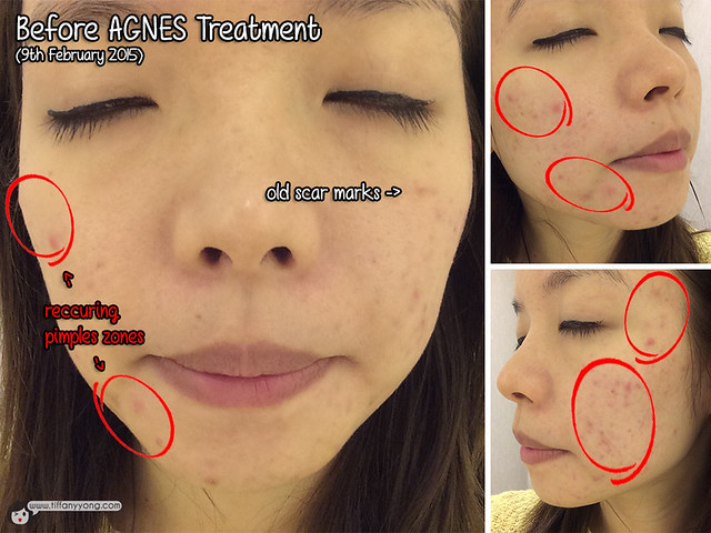 Agnes Treatment 1