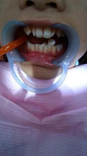 【矯正日誌】高雄牙齒矯正推薦,去給西河牙醫診所林書妡醫師裝戴蒙矯正器囉_牙齒是已經酸蝕過後要準備上矯正器,左邊是吸口水的管子+中間跑上來的棉捲