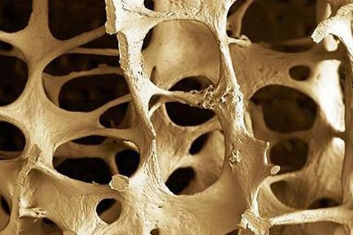 La Osteoporosis afecta a hombres y mujeres http://t.co/O38Vnv6jYz